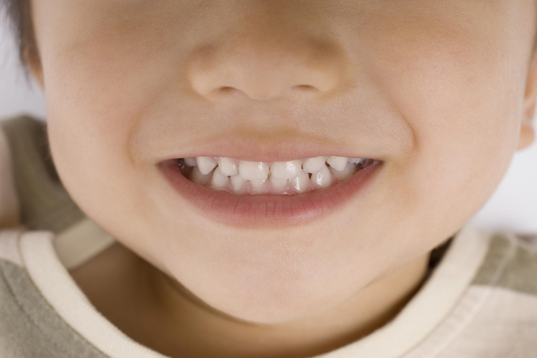 将来を見据えた歯並び